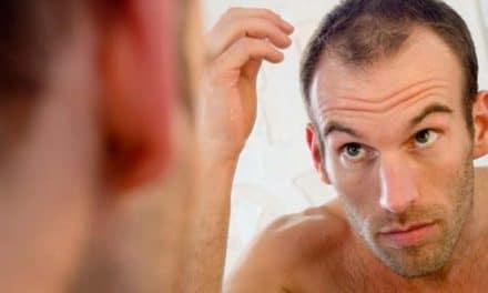 Erblich bedingter Haarausfall bei Männern Stoppen