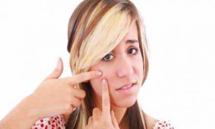 Akne Inversa Heilung: was hilft gegen akne inversa?