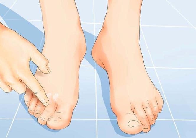 Fußpilz Fußpilz Fußpilz HausmittelfusspilzBilder Fußpilz