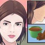 Die 10 besten Hausmittel gegen Pickel